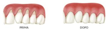 parodontologia3